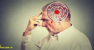راهکارهای جلوگیری از آلزایمر